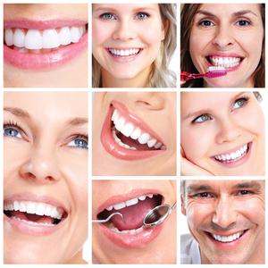 dużo zębów