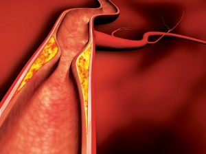 tętnica